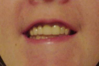 permanent teeth.jpg